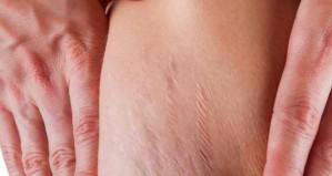stretch-marks-620x330