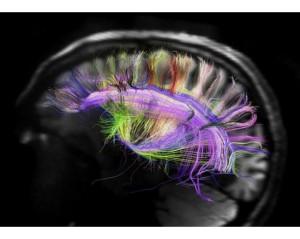 fotos-redes-cerebro___2624-cerebro-tramas1-211